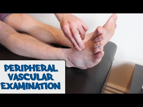 Peripheral Vascular Examination - OSCE Guide  (Old Version)