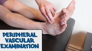 Peripheral Vascular Examination - OSCE Guide