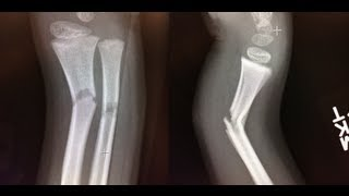 angulated forearm fracture