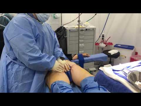 Groin Incision Thigh Lift Part 3 with Dr. Hughes