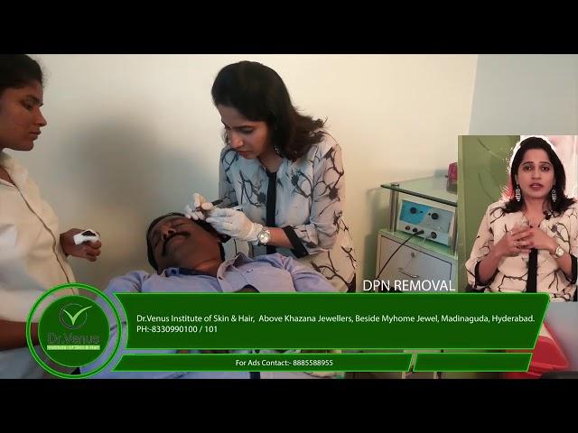 Dermatosis Papulosa Nigra (DPN) Treatment