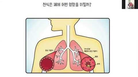 소아과에 가기전에 16 부비동염 폐렴 결막염 늑연골염 늑막염 천식 감기의 합병증 3