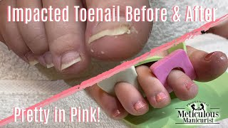 👣Calloused Heels & Impacted Toenail How To Cleaning Transformation 👣