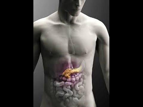 Панкреатит - симптомы, лечение, диагностика, причины