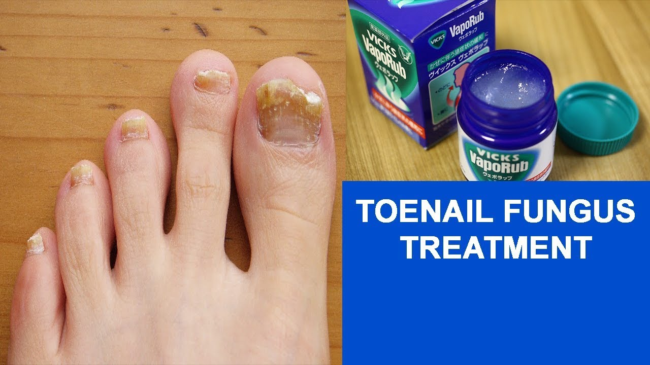 Nail Fungus Treatment at Home What Is Best Treatment for Toenail Fungus Infection