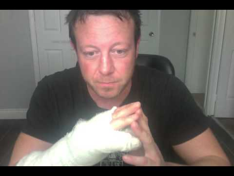 scaphoid wrist ligament reconstruction / repair surgery day 13