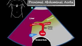 Bedside Ultrasound Abdominal Aorta