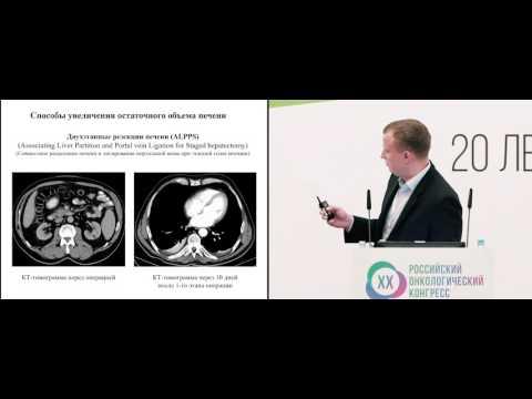 Метастазы рака в печени: лечение, симптомы, прогноз и