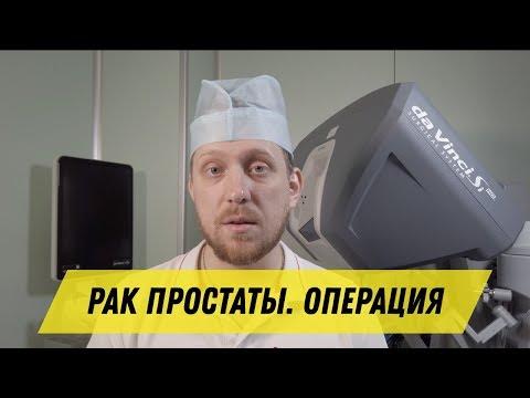 Операция по удалению яичек при раке простаты видеоурок