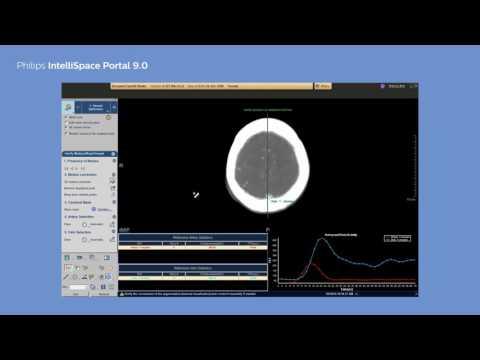 Philips IntelliSpace Portal 9.0 clinical application CT Brain Perfusion