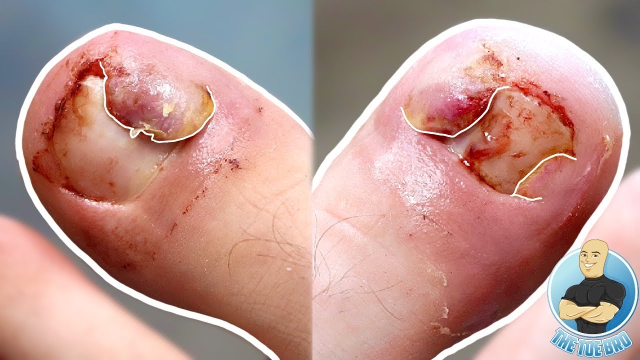HUGE TOE FLAPS AND PAINFUL INGROWN TOENAILS REMOVED!!!