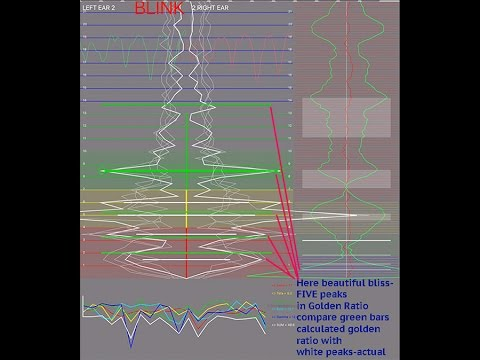 FlameinMind.com Example- Bliss/Peak Perception Phase Conjugate EEG