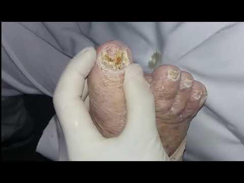 Педикюр страшных грибковых ногтей