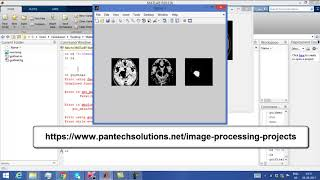 Matlab code for Kmeans Segmentation