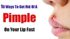 hqdefault - How To Get Rid Of Pimple On Upper Lip