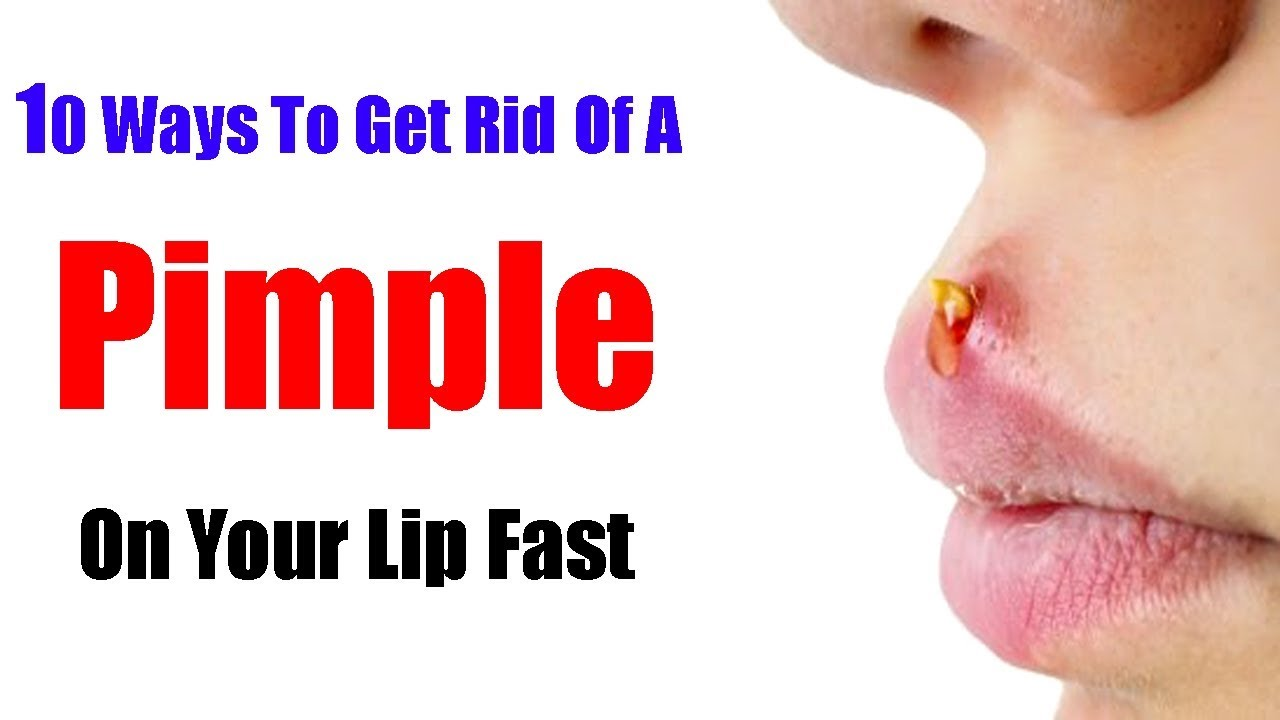10 Ways To Get Rid Of A Pimple On Your Lip Fast Youtube