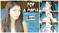 hqdefault - How To Prevent Pimple Scars After Pop