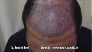 Best Hair Transplant in Delhi  Jaipur India by Dr.Suneet Soni at Medispa Hair Transplant Center