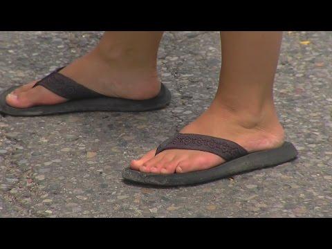 Wearing Flip Flops Is Worse Than Heels, Doctors Warn