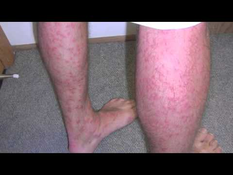 swimmers itch rash #10