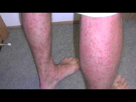swimmers itch rash #10