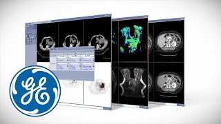 GE AW OncoQuant Radiology Imaging Software Video