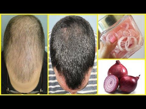 20 दिनों में प्याज के रस से बालों को Regrowth करे | Onion Juice For Hair Loss And Hair Regrowth