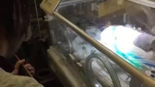 Video që përloti gjithë botën - Nëna vdes gjatë lindjes kurse foshnja është në inkubator, një person