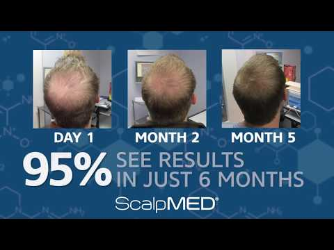 stop-hair-loss-and-regrow-your-own-hair-back-today-with-scalp-med®