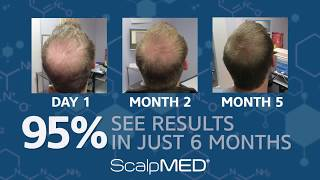Start Regrowing Your Hair Today with Scalp Med