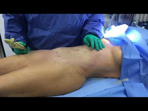 Liposuction Revision Abdomen with BodyTite with Dr. Hughes in Los Angeles