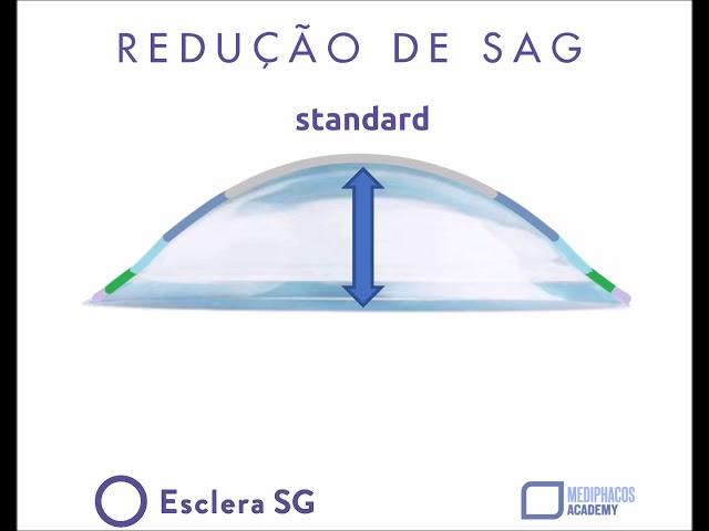 Dicas Vision Care -  Esclera SG   Redução de Sag ou Curva Reversa