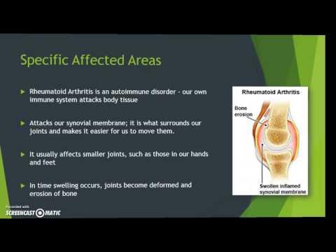 Rheumatoid Arthritis Presentation