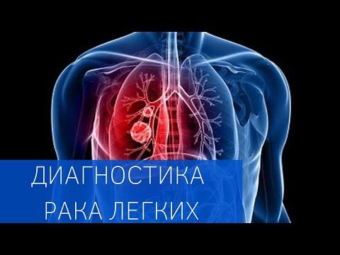 О ранней диагностике рака легких