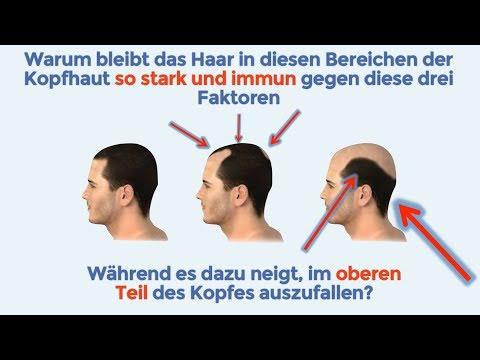 haarausfall-stoppen---natürliche-anti-haarverlust-behandlung---natürliche-mittel-gegen-haarausfall
