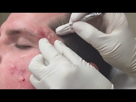 Super Satisfying Blackhead Removal