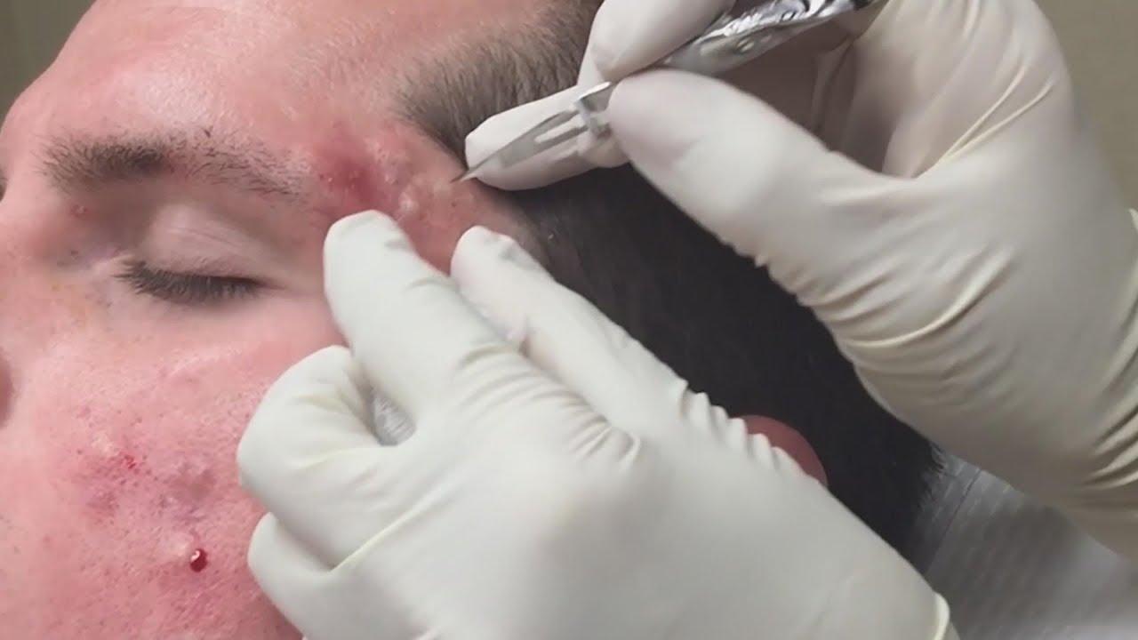 Super Satisfying Blackhead Removal