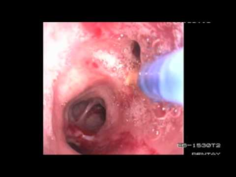 Bronchoscopy Procedure - See inside the lungs!
