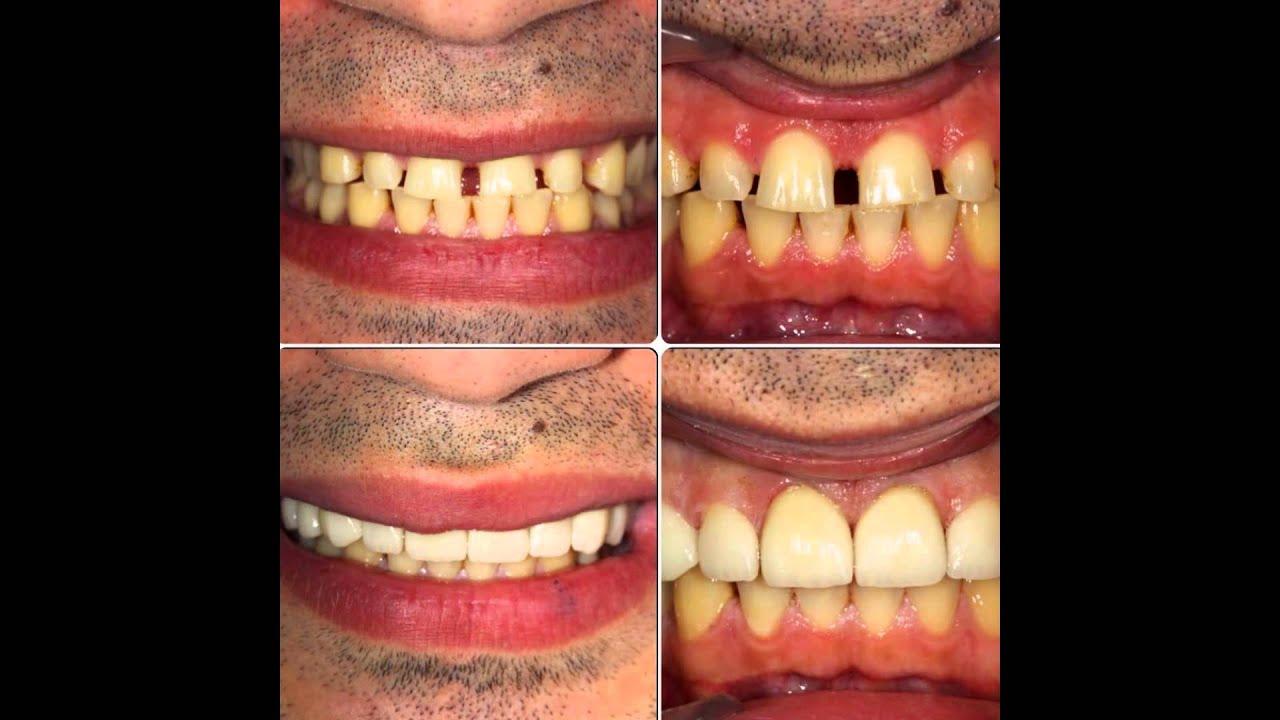 Diş Hastanelerinde En İyiler