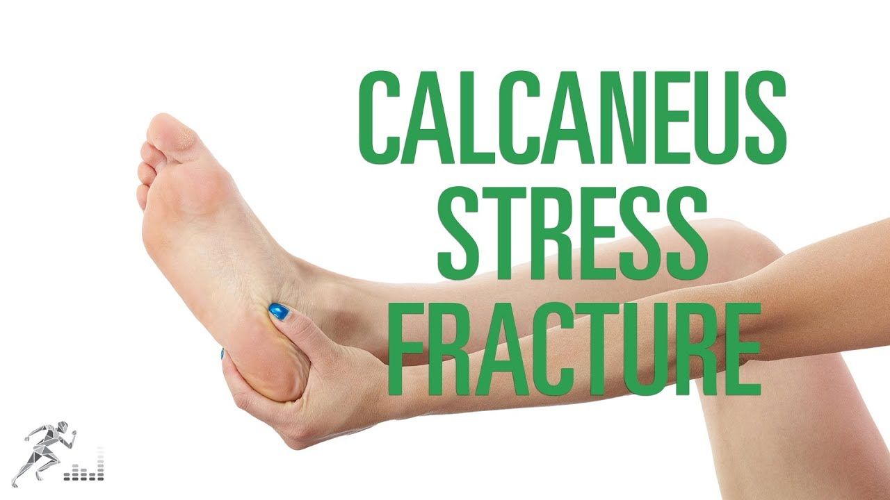 Calcaneus stress fracture: Signs, symptoms and treatment options