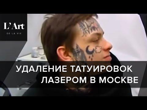 Выведение татуировок лазером. СЕНСАЦИОННЫЙ способ бесследного выведения татуировок лазером. L` Art.