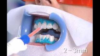 Teeth whitening Beirut Lebanon - Hollywood Smile Ferrari Dental Clinic