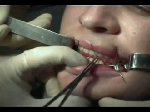 Шинирование челюсти -