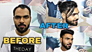 BEFORE & AFTER ultra thin base hair patch system for man / 9582581323