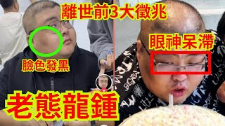 "Publication Date: 2021-03-12   Video Title: 千萬網紅大胃王""泡泡龍""猝死前3大徵兆:臉部發黑,眼神呆滯無"