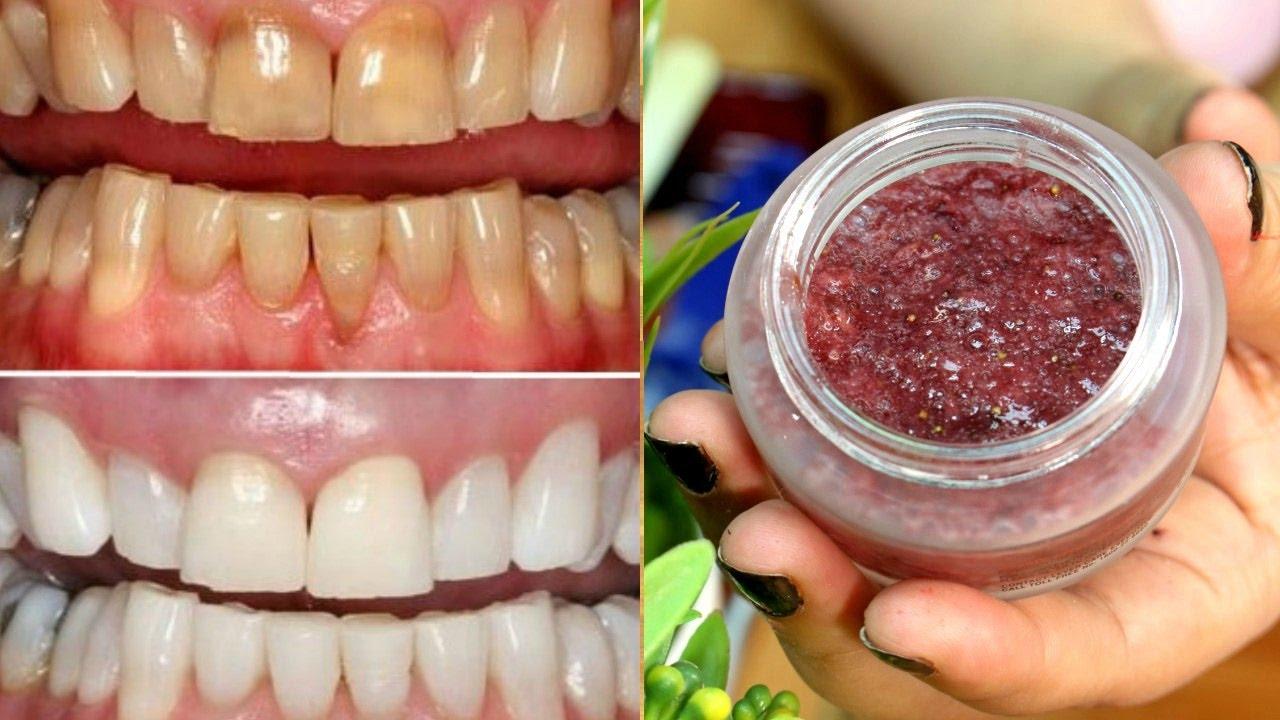 How To Whiten Your Dirty Yellowish Teeth Naturally Teeth Whitening