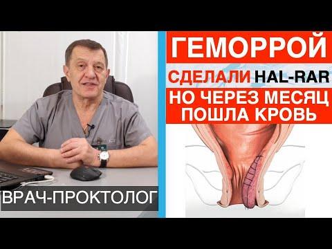 Лечение геморроя операцией Hal-Rar - кровь через месяц после Hal-Rar | колопроктология | проктология | карапетович | багдасарян | геморроя | геморрой | вылечить | лечение | гемороя | гемор
