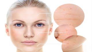 How Deep Clean Pores