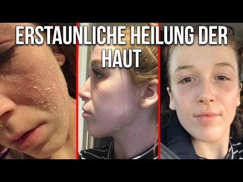 Erstaunliche Heilung der Haut durch natürliche Kosmetik - Bessere Haut in nur wenigen Tagen
