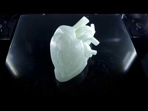 3D Druck eines menschlichen Herzens (3D print of a human heart)